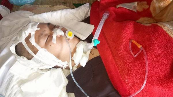 Cô gái Gia Lai bị thương nặng do tai nạn đang giành giật sự sống từng giờ