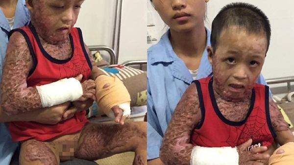 Nỗi đau xé lòng của bé trai bị cắt cụt chân, toàn thân bỏng rộp vì tai nạn do cồn nướng mực