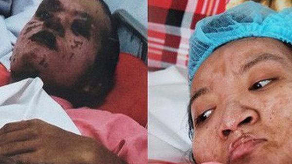 Xót Xa cảnh thai phụ trẻ và người yêu bỏng nặng vì cháy nhà trước ngày cưới