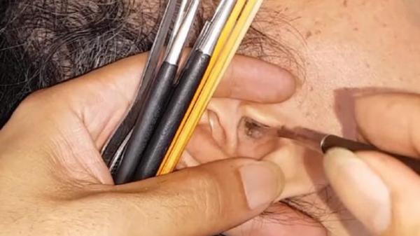 """Lấy ráy tai không đúng có thể bị điếc và nhiễm trùng não: Bác sĩ tai – mũi – họng khuyên """"tuyệt đối không bao giờ được lấy ráy tai kiểu này"""""""