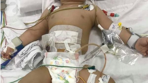 Kinh hoàng: Bé trai 11 tháng tuổi bị mẹ ruột dùng dao đâm nhiều nhát vào bụng nguy kịch