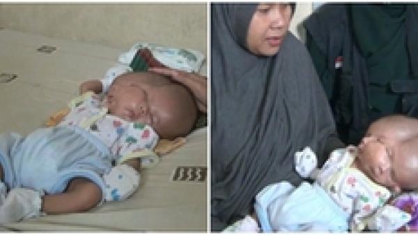 Kỳ lạ cậu bé sinh ra với hai khuôn mặt và hai bộ não trên cùng một cơ thể khiến nhiều người xót xa