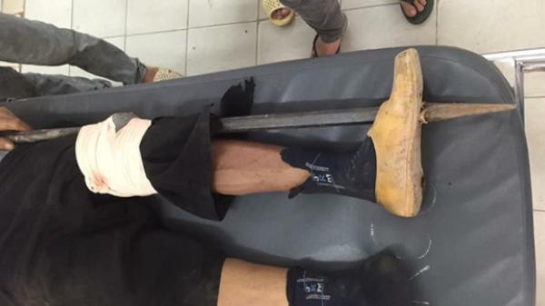 Xót xa người thợ hồ bị xà beng rơi từ trên cao đâm thủng chân trái