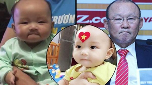 Tìm ra danh tính em bé Việt giống hệt HLV Park Hang Seo: Nhìn mặt mẹ thế kia bảo sao chả giống thế!