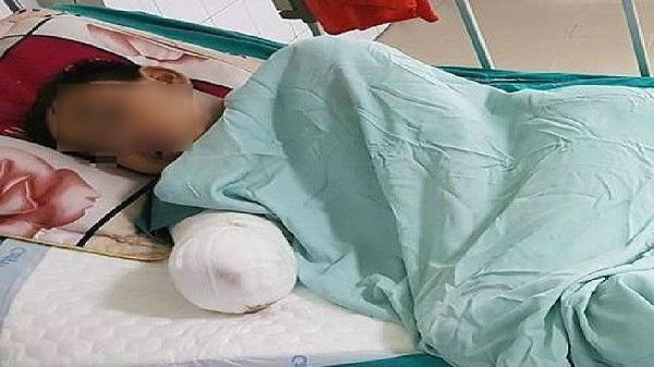 Hải Dương: Trèo tường bị điện giật bất tỉnh, phải cắt cụt cánh tay