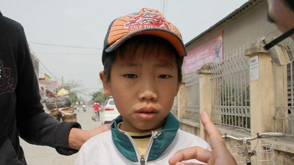 Nam sinh lớp 3 bị bạn bắn que xiên thịt mù một bên mắt ở Hải Dương giờ ra sao?
