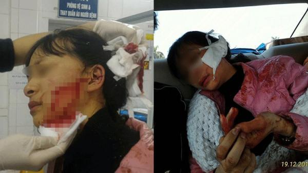 Mâu thuẫn buôn bán, nữ sinh lớp 11 bị rạch mặt dã man, máu chảy lênh láng