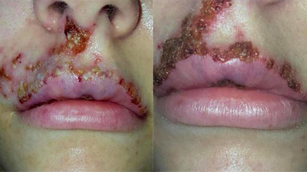Kinh hoàng đôi môi sưng phồng, biến thành màu xanh vì nhiễm trùng da sau tiêm filler