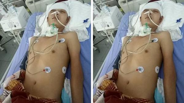 Hà Nam: Mẹ rớt nước mắt, bất lực nhìn con bị tai nạn chấn thương sọ não