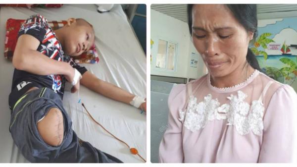 Hà Nam: Ước mong có chiếc chân giả của cậu bé mắc bệnh hiểm nghèo