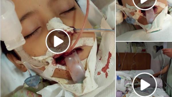 Mẹ dạy đánh răng sai cách khiến con trai nhập viện nguy kịch vì xuất huyết não
