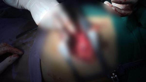Mẫu t.huẫn sau v.a chạm giao thông, nam thanh niên Hà Nam bị đ.âm 3 vết th.ương th.ấu tim