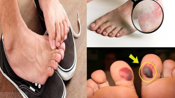 Dừng ngay việc đi giày không đi tất vì như thế là bạn đang hại mình