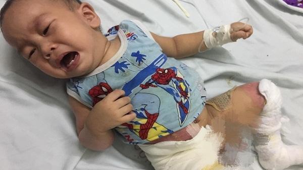 Hà Tĩnh: Tiếng khóc xé lòng của bé trai 14 tháng tuổi bị bỏng nước sôi