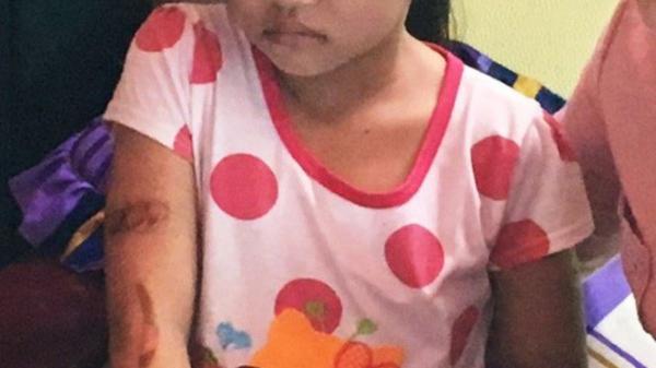 Hậu Giang: Đưa bé 7 tuổi nghi bị bố dí sắt đỏ đi giám định thương tật