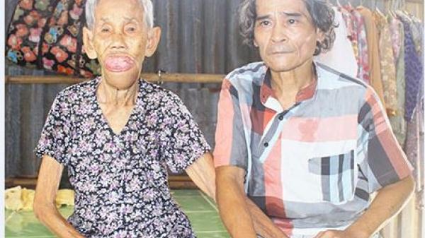 Hậu Giang: Nỗi khổ người phụ nữ nổi bướu ở miệng suốt 30 năm