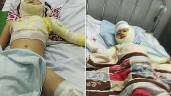 Bố nướng mực cháy nhà khiến con 2 tuổi t.ử v.ong, 3 người khác nhập viện