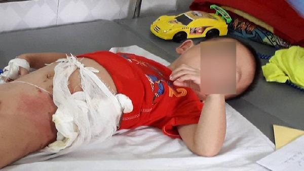 Hòa Bình: Tạm giữ bác ruột ném cháu trai 5 tuổi vào đống lửa vì một quả dưa chuột