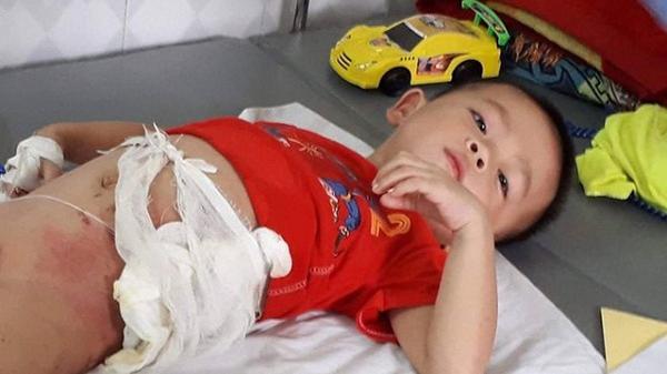 Hòa Bình: Cập nhật tình hình mới nhất em bé 5 tuổi bị bác ruột ném vào đống lửa chỉ vì quả dưa chuột