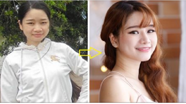 Cô gái Nha Trang sửa nhan sắc để hóa giải lận đận tình duyên