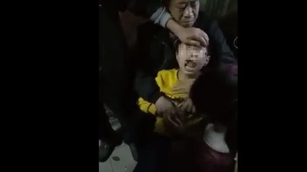Thực hư clip em bé phát bệnh dại vì bị chó cắn không dám nói với bố