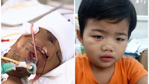 TP HCM: Tìm người thân cho bé trai 3 tuổi và bố bị tai n ạn giao thông nghiêm trọng