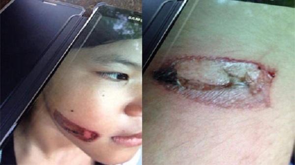 Kiên Giang : Bé gái bị bạo hành bằng sắt nung đỏ dí vào hai cánh tay