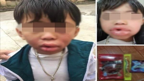 Lai Châu: Bé trai sưng vêu miệng, phải nhập viện sau khi ăn kẹo trước cổng trường