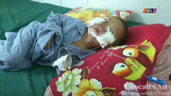 Lào Cai: Một bé trai hơn 2 tuổi bị chó cắn vào mặt gây thương tích nặng