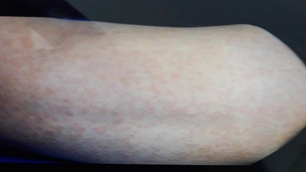 Sa Pa: Mẫu bệnh phẩm của bệnh nhân sốt phát ban âm tính với bệnh sởi, rubella