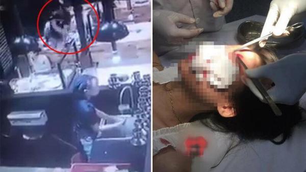 Hai cô gái bị nam thanh niên ném cốc, đánh túi bụi ở quán ăn