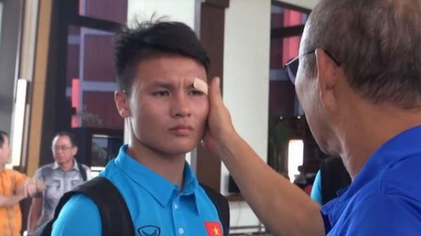Quang Hải phụng phịu để HLV Park Hang Seo dán lại vết rách ở mắt