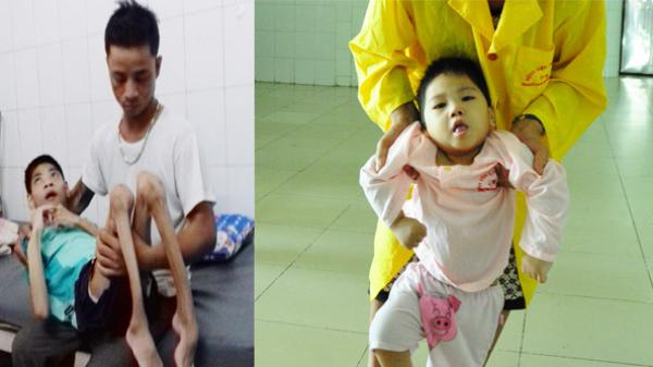 Xé lòng cảnh 2 con bị bại não, bố làm phụ hồ vẫn không kiếm đủ tiền chữa trị ở Bắc Giang