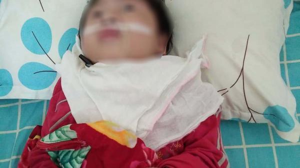 Nhân viên y tế làm tuột canuyn khiến bé 6 tuổi ở Sơn La bị t.eo n.ão, không nhận thức được?