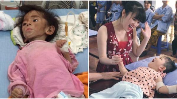 9X nhận nuôi bé bại não ở Lào Cai: Nhìn con rớt nước mắt không nhận ra