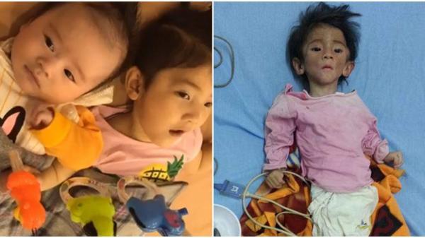 Mẹ nuôi ghi hình trực tiếp tiết lộ tình trạng hiện tại của bé gái Lào Cai
