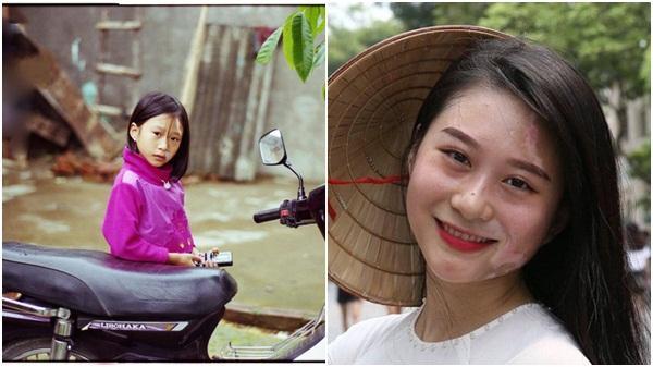 Cô gái Lào Cai hơn 20 năm sống với bệnh bạch biến