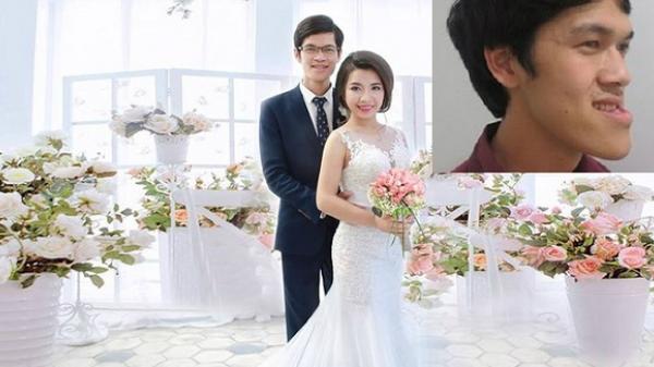 """Nam Định: Cái kết có hậu của cô gái vay tiền phẫu thuật cho bạn trai """"mặt lưỡi liềm"""""""