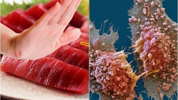 Thì ra tế bào ung thư cực yêu thích những món ăn này, chỉ cần bỏ đói là chúng tự tiêu biến mất lúc nào không hay