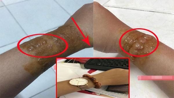 """Cảnh giác: Chuỗi hạt đeo tay đang """"hot"""" trên thị trường có thể gây dị ứng đáng sợ"""