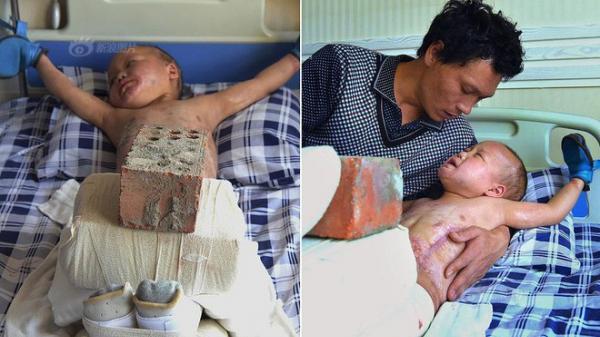 Xót xa chuyện người đàn ông bị vợ bỏ rơi, mỗi ngày dùng 15kg gạch đè lên chân đứa con 5 tuổi để chữa bỏng
