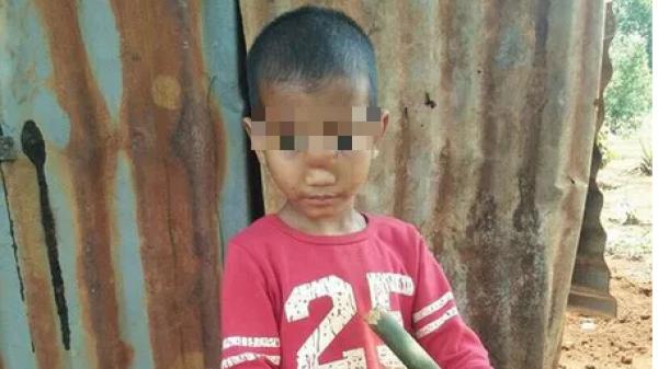 Gia Lai: Căn bệnh k.ỳ lạ khiến cậu bé bị t.ụt n.ão xuống mũi