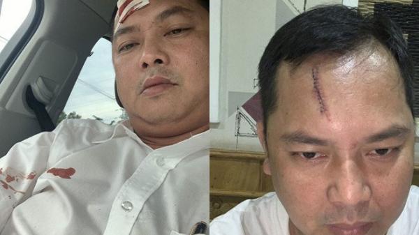 """Vụ gi.ang h.ồ vây xe công an: Người kh.âu 13 mũi nói """"bị cảnh sát cầm ghế ph.ang r.ách tr.án"""""""