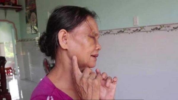 Vụ con dâu đ.ánh mẹ chồng b.ầm d.ập mặt mũi: Con dâu bị ph.ạt 2 triệu và t.iết lộ 'mẹ chồng t.ưới nước đái khắp nhà'