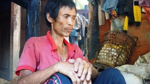 """Người rừng Hồ Văn Lang bị ung thư, em trai bất lực đưa về nhà vì """"làm gì có tiền để đưa anh chữa trị dài ngày"""""""