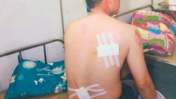 Ninh Bình: Phụ xe c ô n đồ, cầm kiếm ch.ém người trọng thương tại bến xe
