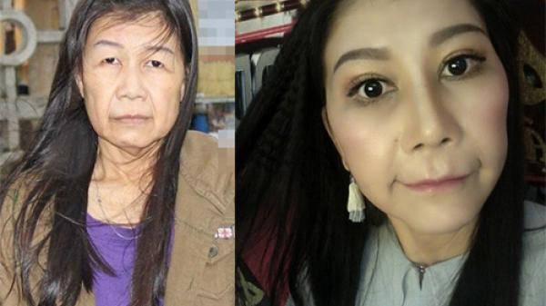 Hành trình phẫu thuật thẩm mỹ của cô gái trẻ mắc bệnh lạ ở Phú Yên