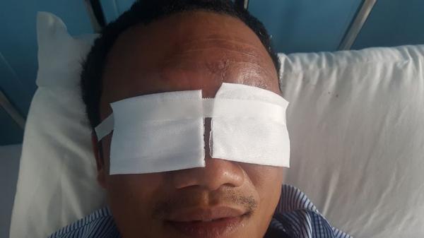 Liên tiếp xảy ra những vụ tai nạn do pháo nổ tại Quảng Bình
