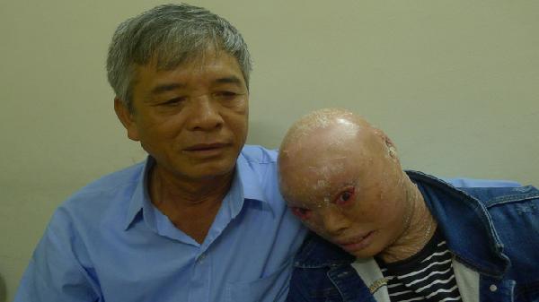 BV Mắt TƯ phẫu thuật thành công ca bệnh khó do ảnh hưởng chất độc màu da cam