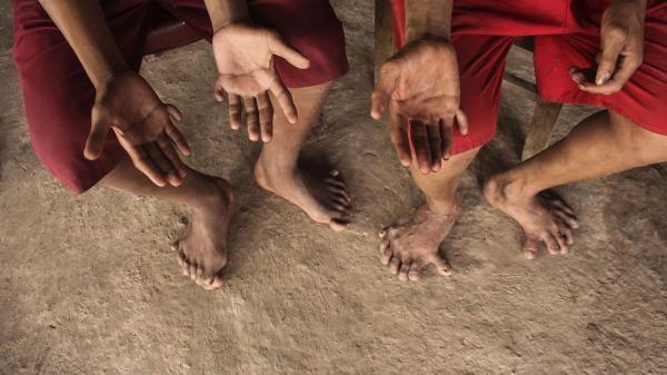 Kỳ lạ 2 anh em có 26 ngón tay, chân ở Quảng Bình